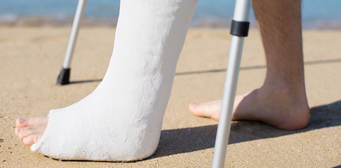 man with casted leg on beach | Coastline Realty Vacations